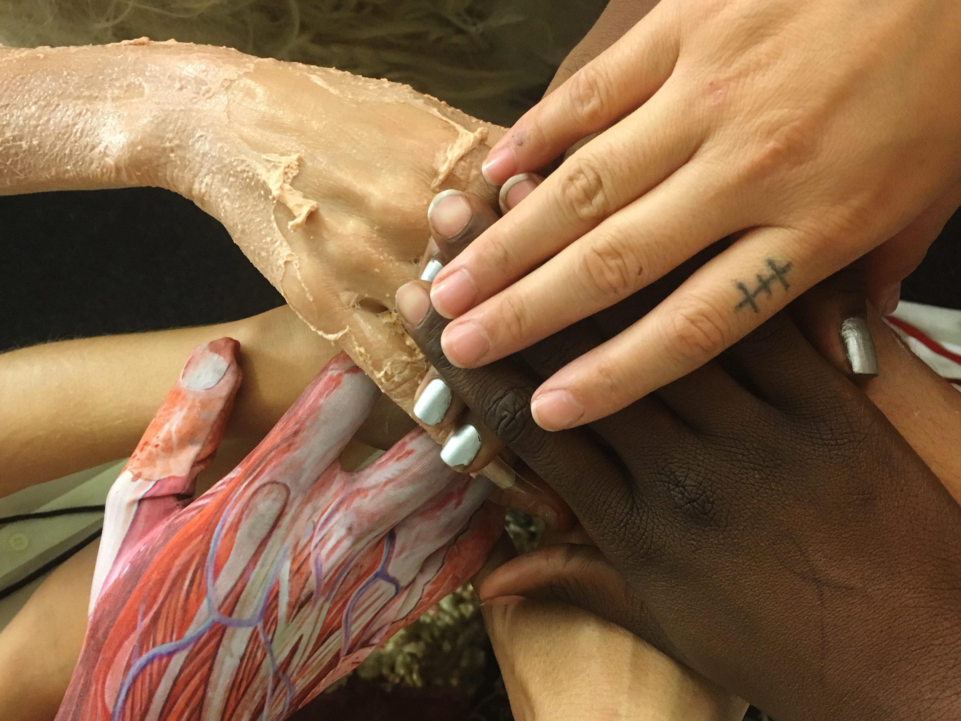 MS hands (1)